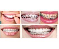 Aparatos de ortodoncia - totalmente estéticos !!!