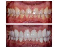 Carillas dentales - super estética !!!