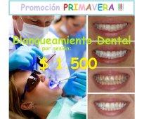 Blanqueamiento dental - plan de tratamiento personalizado !!!