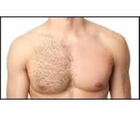 depilacion masculina caballito