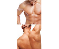 Depilación masculina madrid