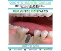 Implantes dentales inmediatos titanio optima oseointegración