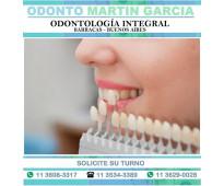 Carillas dentales - super estéticas e imperceptibles / consulta: