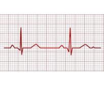 San nicolas, a domicilio holter ecg electrocardiogramas