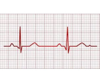 electrocardiograma ,ecg ,holter barrio norte,recoleta,a,domocilio, e 1170378016