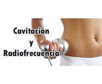 Ultracavitación y radiofrecuencia. - palermo
