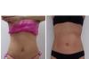 Bajar de 5 a 10 cm de cintura en un mes si es posible